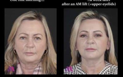 The AM Mini Face Lift